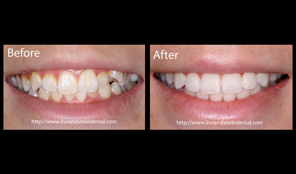 Before And After Live Smile Dental Orthodontics Dublin Ca
