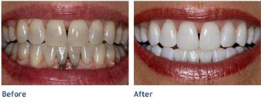 Teeth Whitening Live Smile Dental Orthodontics Dublin Ca